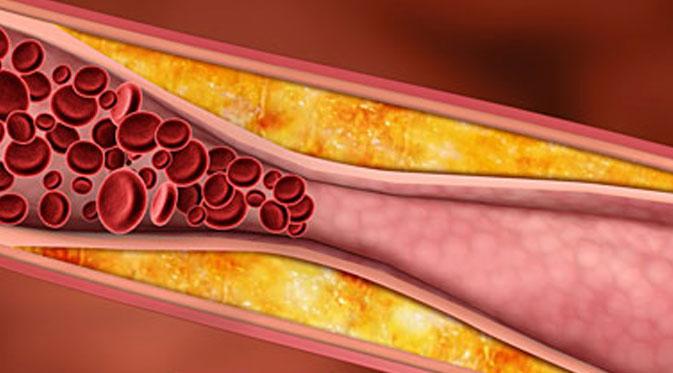 Waspadai 7 Gejala Kolesterol Tinggi Penyebab Kematian